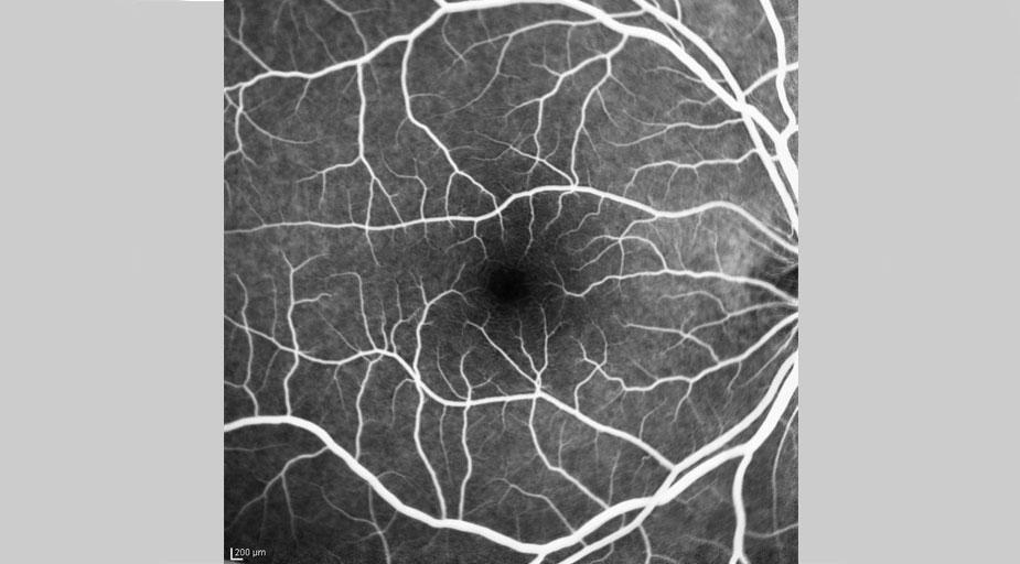 Augenärzte Sindelfingen – Augenheilkunde – Fluoreszein-Angiographie